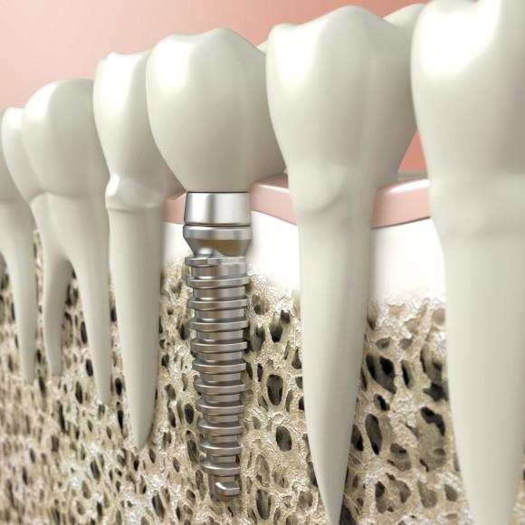 Implanty i Chirurgia
